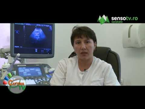 Aggressive cancer lymph nodes