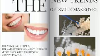 歯を削らないベニア:スーパーエナメルは大好評