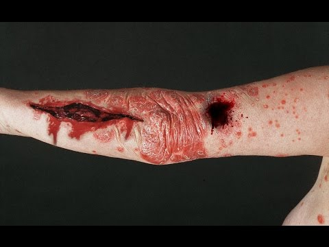 5 животных - переносчиков опасных и страшных болезней