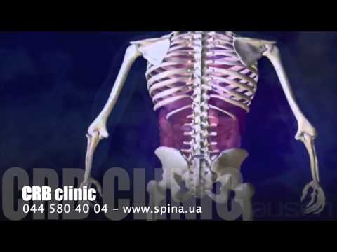 Аппарат илизарова коленный сустав