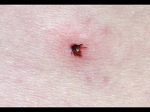 Video How to Treat Tick Bites Naturally