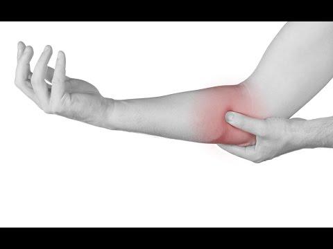 Osteocondrosis inflamado los ganglios linfáticos de la ingle
