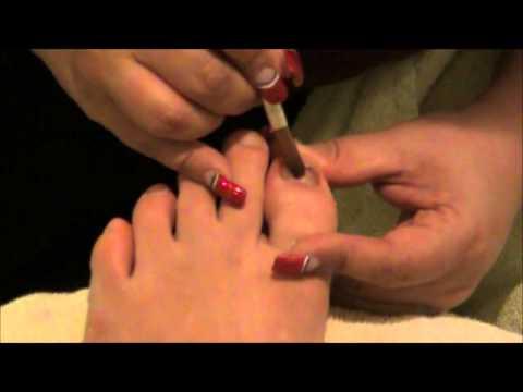 Kość kciuka na jego leczenie stóp