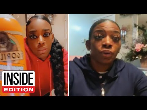 TikToker Who Used Gorilla Glue in Hair Says ER Couldn't Help