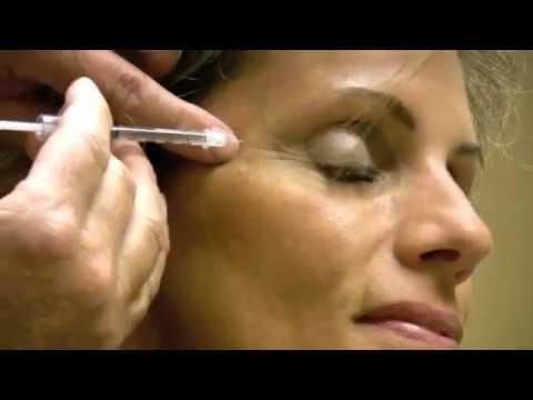 Langis facial wrinkles pagkatapos ng 45