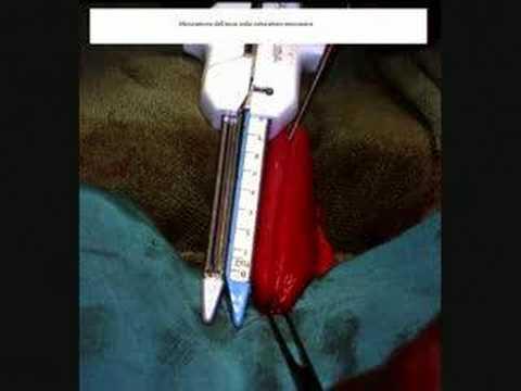 Macrofoams trattamento di prostatite