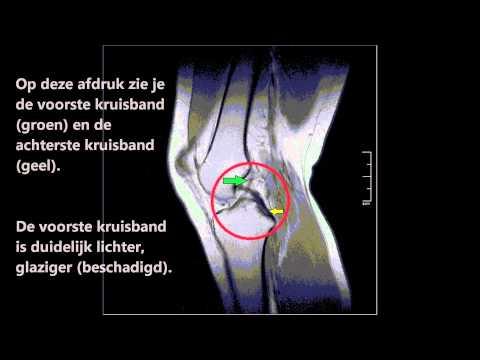 Kniegelenk Dysplasie Gymnastik
