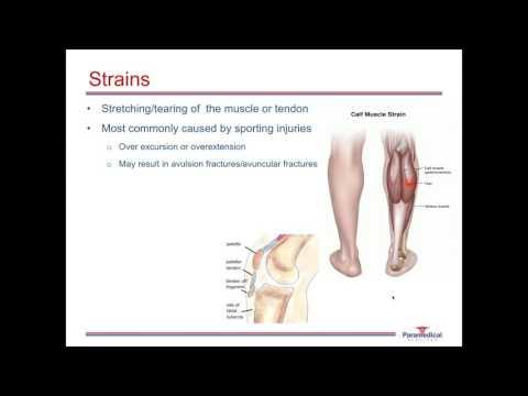Tratamentul artrozei forului degetelor mari