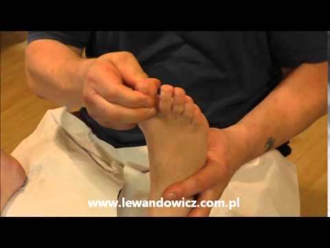 Jak pozbyć się guzki na palcach pinky