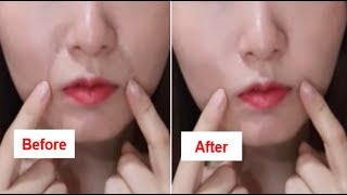 How To Get Rid Of Laugh Lines (Nasolabial Folds) Naturally At Home!