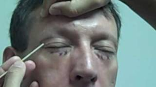 Upper & Lower Lid Blepharoplasty(Male)- Part 2
