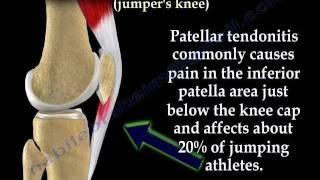 Patellar Tendonitis Jumper's Knee - Everything You Need To Know - Dr. Nabil Ebraheim