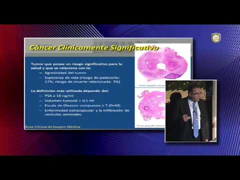 Dieta no tratamento da hiperplasia benigna da próstata