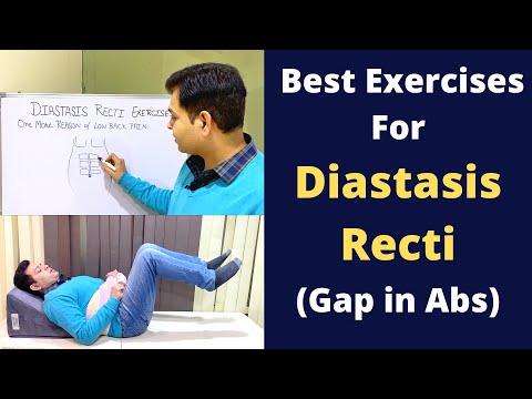 Exercises For Diastasis Recti, Abdominal Seperation, Diastasis Recti Treatment- Reason of Back Pain