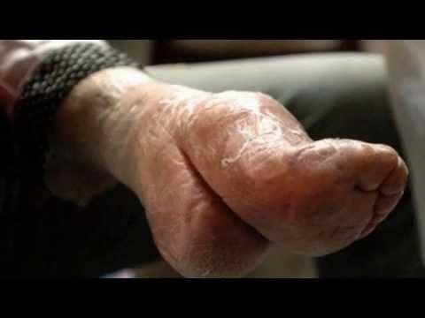 Medycynie ludowej kości na palcach