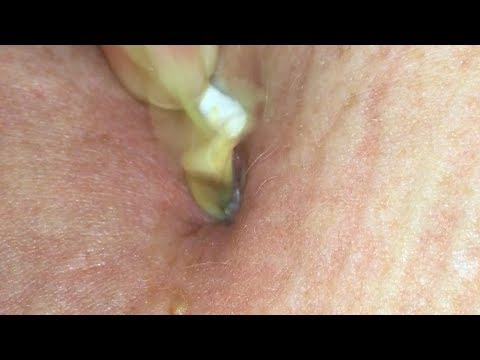 Unbelievable Belly Button Infection POP!