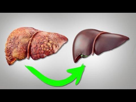 Восстановление печени, цирроз, гепатит. Эти продукты почистят печень, защита и лечение.