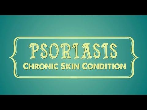 Les onguents appliquant au psoriasis
