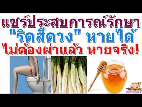 Troksevazin รักษา thrombophlebitis