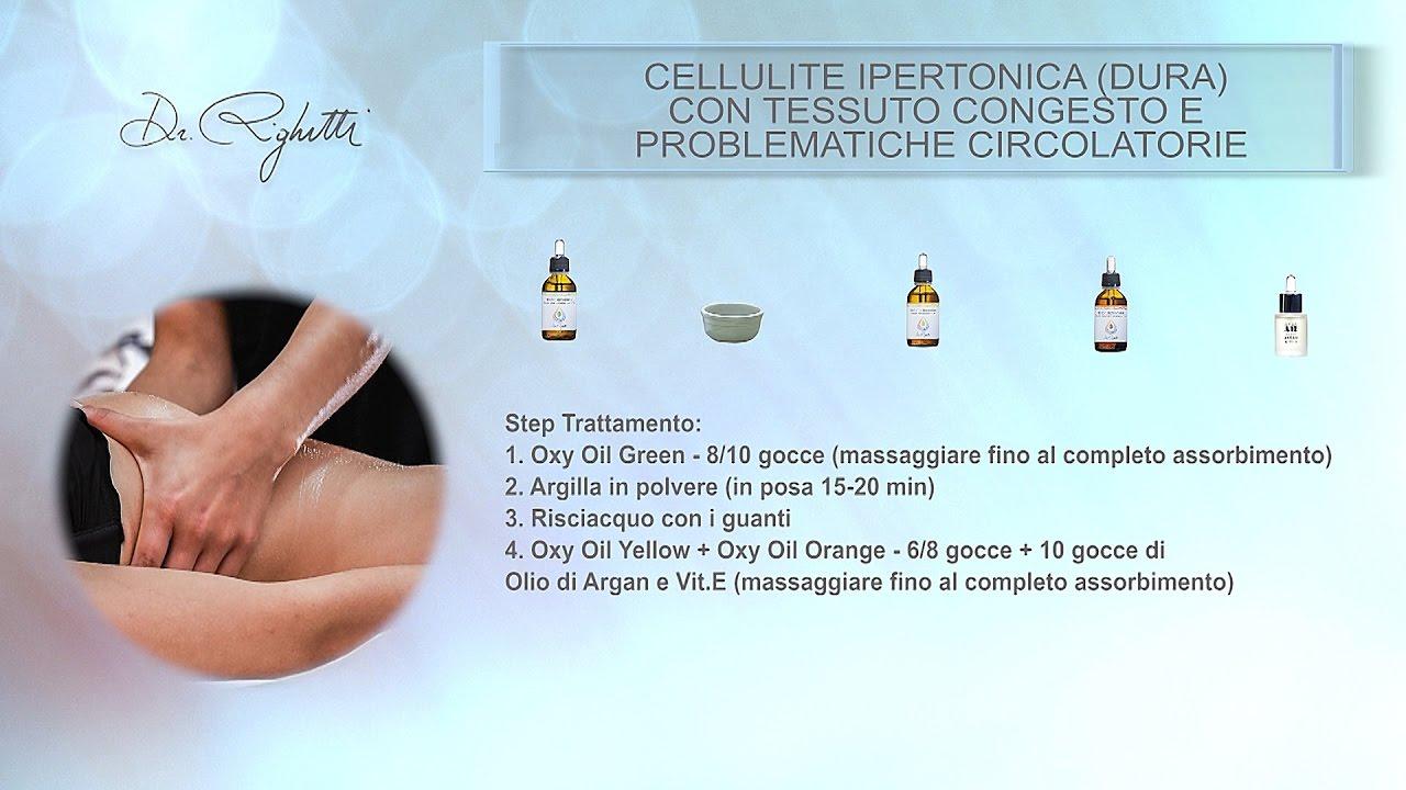 Cellulite Ipertonica
