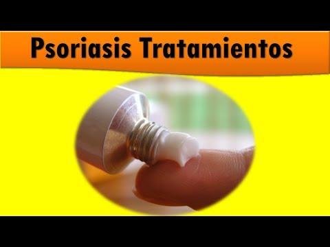 La psoriasis la caída de los cabello como curar