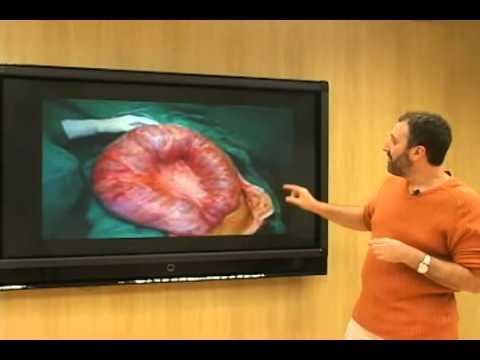 Prostatitis Schmerzen und Bein