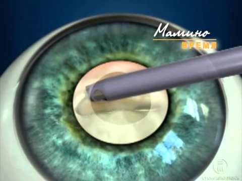 Катаракта. Лечение катаракты. Операция по удалению катаракты.