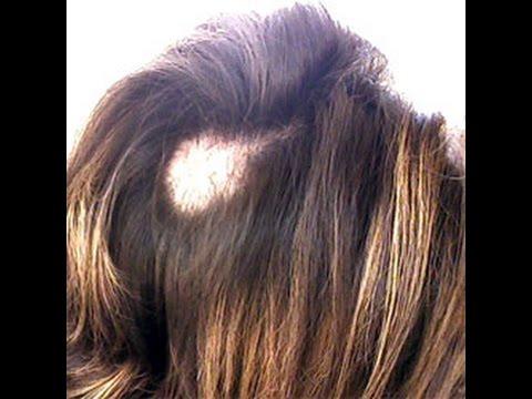 Male-pattern baldness sa mga lalaki