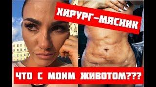 Пластический хирург изуродовал живот. Хирургиня-мясник. Покажите это видео близким.