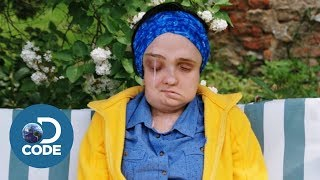 Asia's Life-Changing Face Transplant Surgery