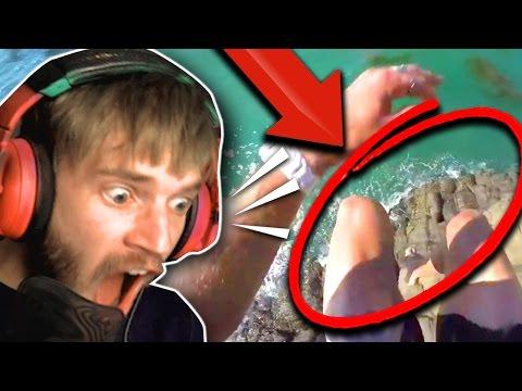 Trattamento di unghie chistotely