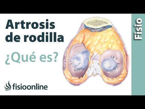 Que para el tratamiento de la pierna y el brazo remedios populares articulaciones