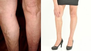 Removal of varicose veins - Jana