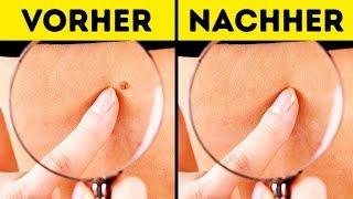 10 Effektive Möglichkeiten Haut-Tags Zu Entfernen