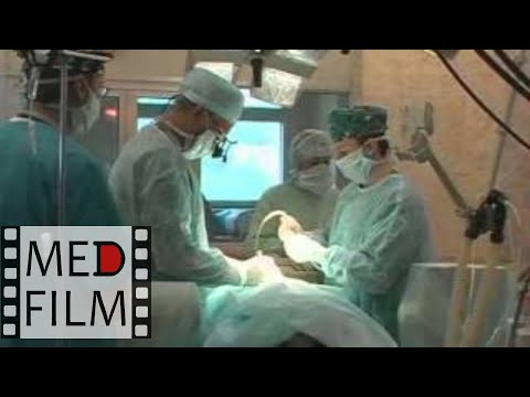 Лазерная реконструкция позвоночных дисков © Laser reconstruction of intervertebral discs