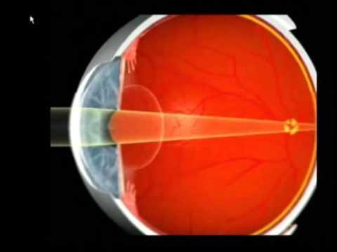 Nutriția și vederea ochilor