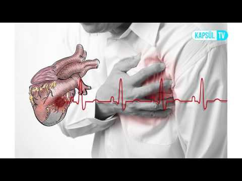 Kalp Krizi (Enfarktüs) Çeşitleri Nelerdir?
