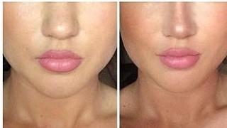 Hässliche Nasen vor und nach dem Abnehmen