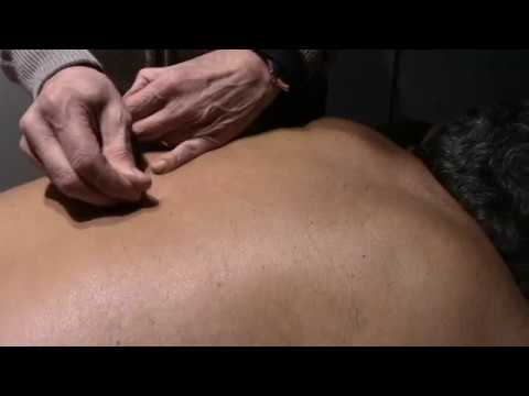 Sindromi di malattia degenerativa del disco delle vertebre cervicali
