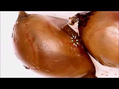 Анализы на наличие паразитов уфа