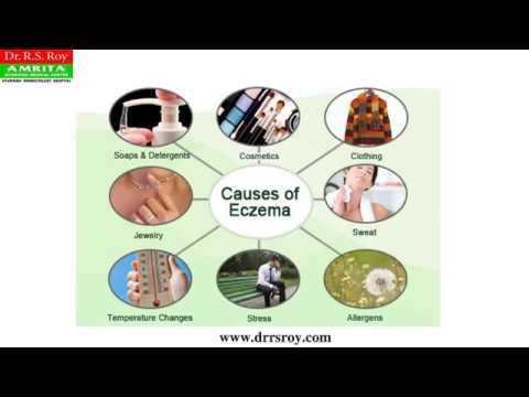 Comme faire longuent avec solidolom du psoriasis