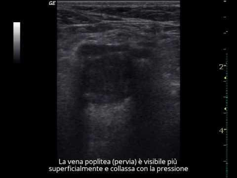 Osteochondrosis di reparto cervicale psychosomatics