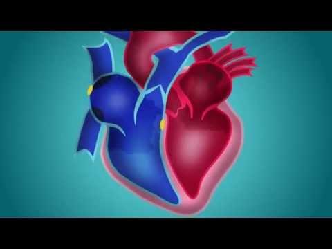 Ce que vous pouvez et ne pouvez pas manger et boire dans lhypertension