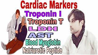 Cardiac Markers (Cardiac Enzymes)