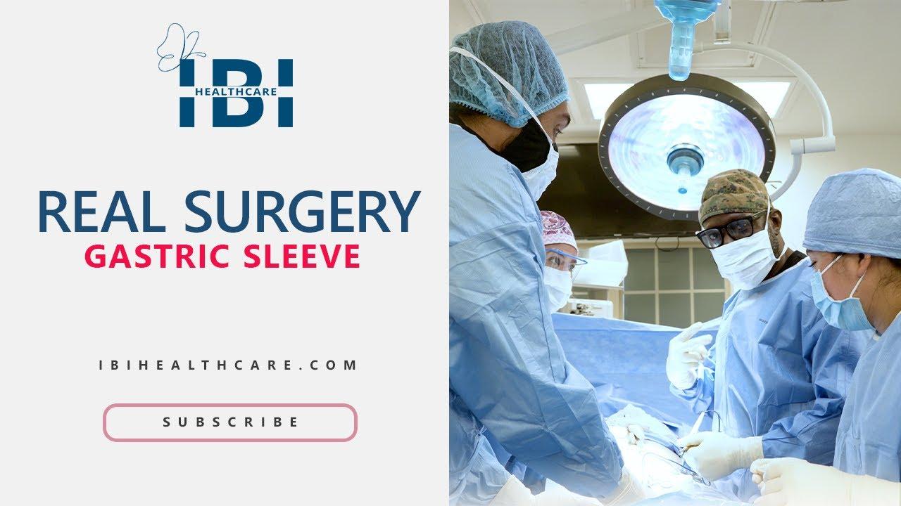 Bariatric Surgery Sleeve Atlanta