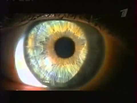 Авто коррекция зрения