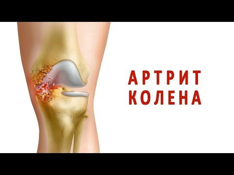 Все об артрите коленного сустава
