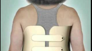 Vertibroplasty & Kyphoplasty: Vertebral Compression Fracture Treatment - DePuy Videos