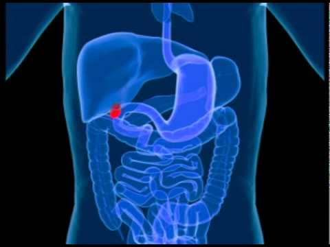 Video Gall Bladder Disease - Learn the Symptoms and Causes of Gall Bladder Disease