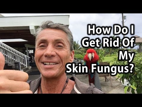 Fungus paa Paano Hindi sa Die